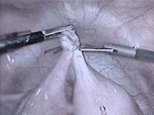 Cirugía por laparoscopia